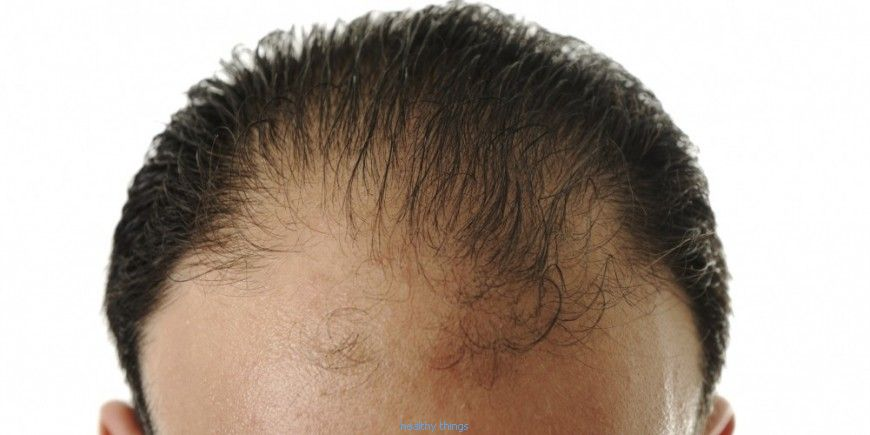 Hair implants against baldness: the advice of a specialist and a patient