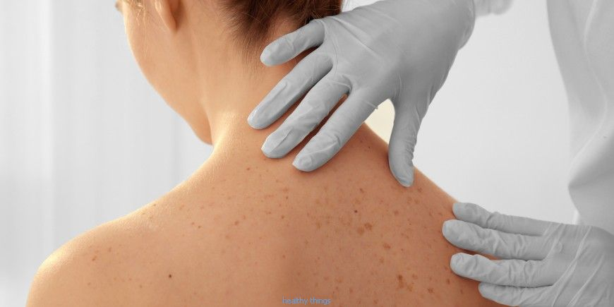 Avoiding and detecting skin cancer: the advice of the dermatologist