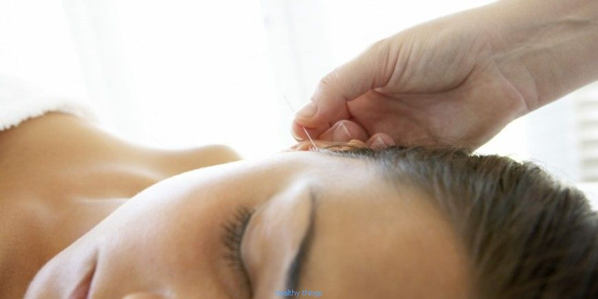 Acupuncture: the indications