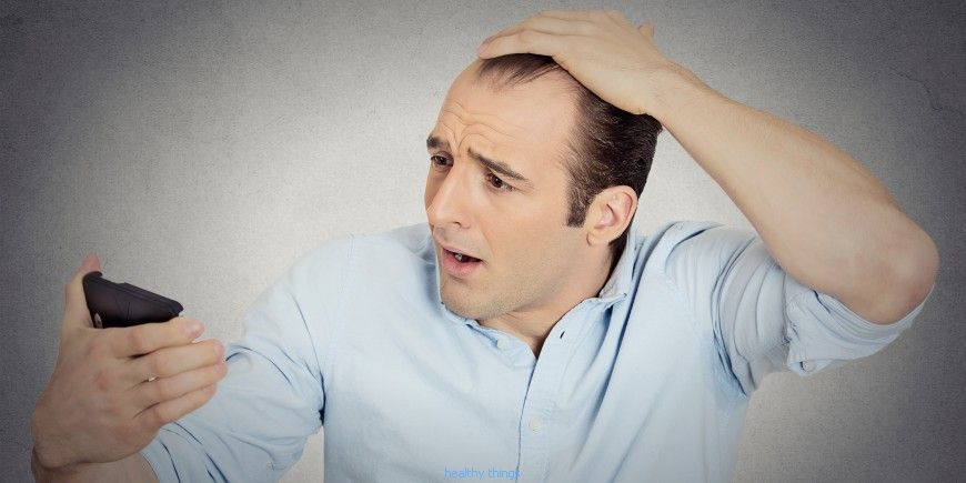 Alopecia: the symptoms
