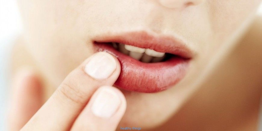 Herpes: the essential thing to know