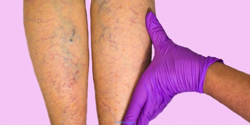 Venous thrombosis: symptoms