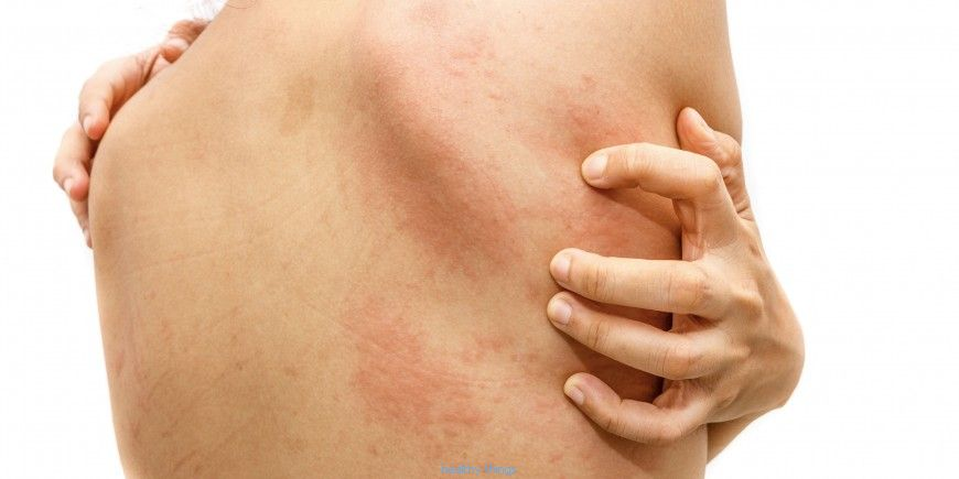 Urticaria: sources and notes