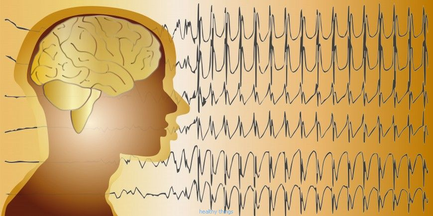 Epilepsy: hyperthermic convulsions of the child - Diseases