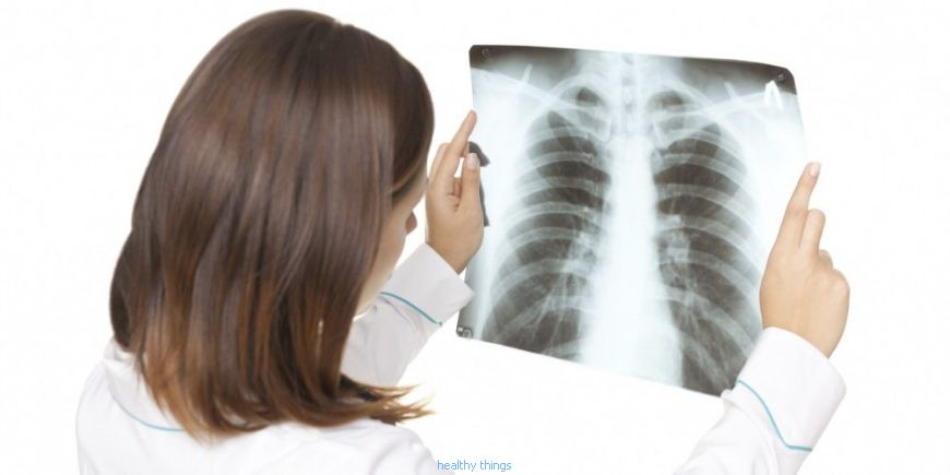 Sarcoidosis: pulmonary sarcoidosis - Diseases