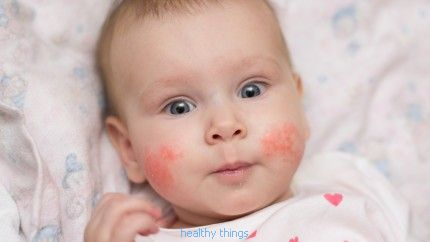 Atopic dermatitis: treatments - Diseases