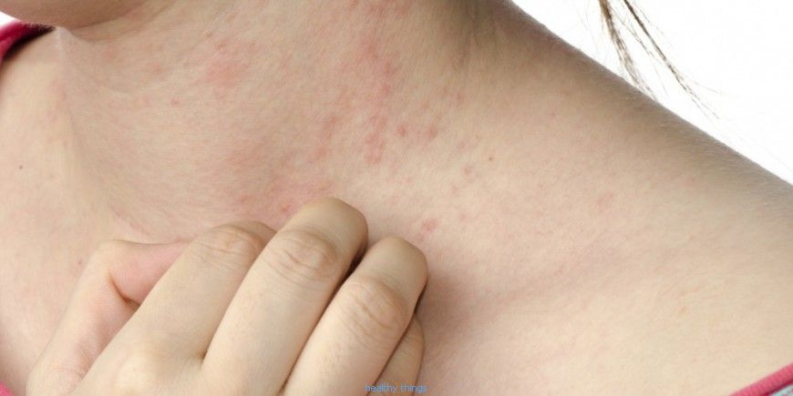 Scabies: recognize it and know how to react!