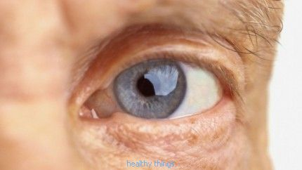 Age-Related Macular Degeneration (AMD): Sources and Notes