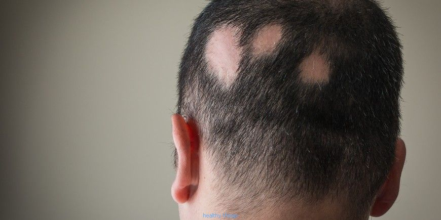Alopecia areata: the treatments - Diseases
