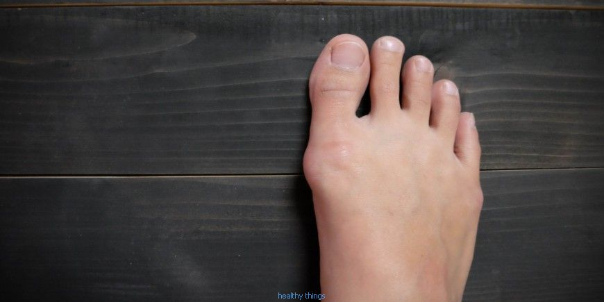 Hallux Valgus: when the big toe is no longer straight