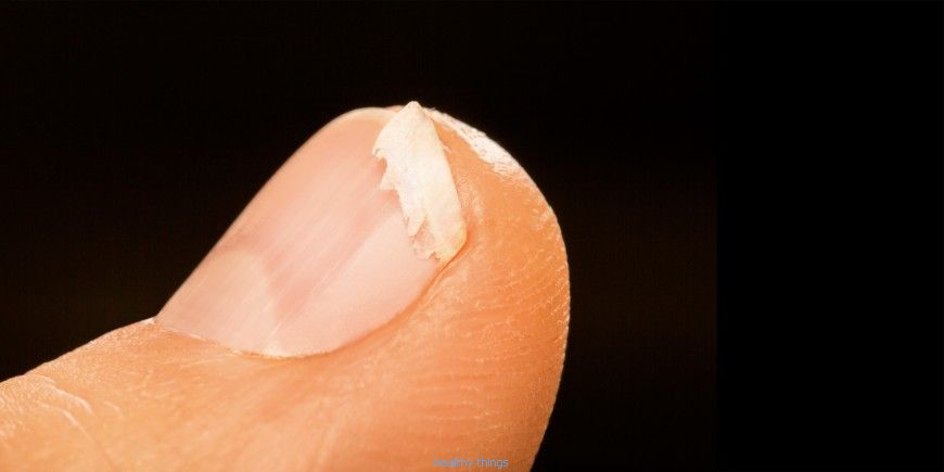 Brittle nails: sources and notes