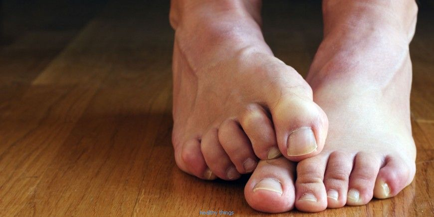 Sweating of feet: treatments
